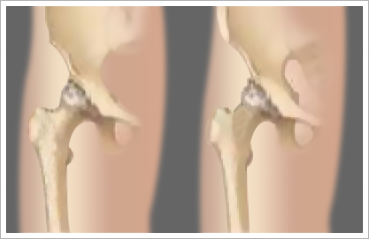 minimally-invasive-hip-replacement-surgery