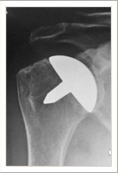 Resurfacing Shoulder Arthroplasty