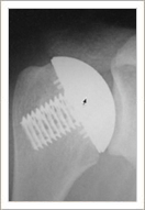 'Stemless' Shoulder Arthroplasty